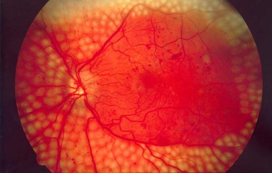 Definición de edema macular diabético