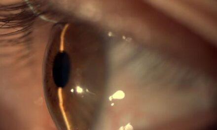 Glaucoma: datos fundamentales