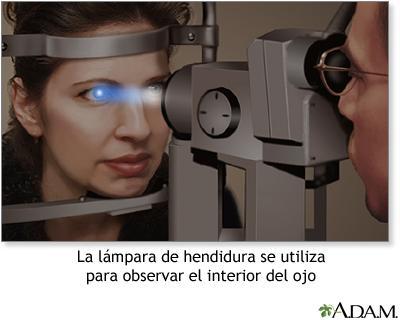 Cómo prevenir los riesgos oculares que causa la diabetes
