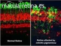 Terapia génica y retinosis pigmentaria
