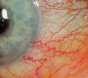 Colirios para los ojos rojos