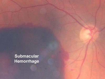 Terapia génica RGX-314 para ensayo clínico de DMAE Neovascular