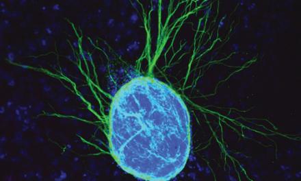 Ensayos clínicos con células madre