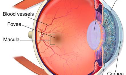 Edad de riesgo y síntomas de las maculopatías
