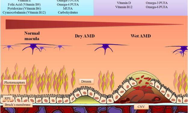Establecer terapias efectivas para la DMAE