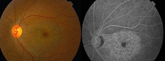 Retinopatías de la retina