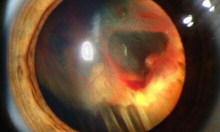 ¿Qué es un agujero macular?