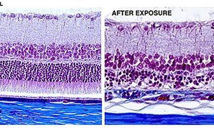 El papel de la luz azul en la patogénesis de la DMAE