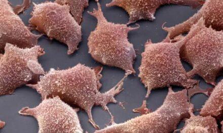 Terapia celular no invasiva para la degeneración retiniana y la patología vascular asociada