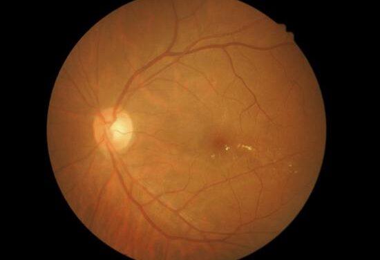 Altas dosis de estatinas para tratar la degeneración macular