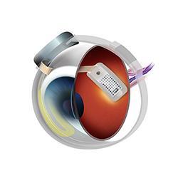 Sesión clínica de un implante ARGUS II en un caso de DMAE seca