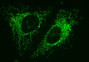 Avances en el tratamiento de la neuropatía óptica hereditaria de Leber
