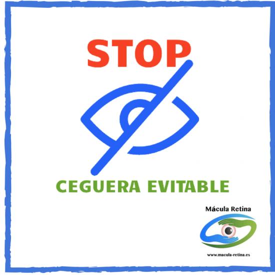 """4 Mayo en Málaga: Campaña """"Evitemos la ceguera evitable"""""""