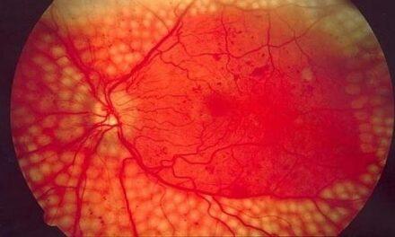 Primer tratamiento capaz de prevenir y revertir la retinopatía diabética