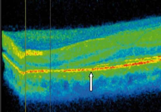 Grosor de la retina y retinopatía diabética