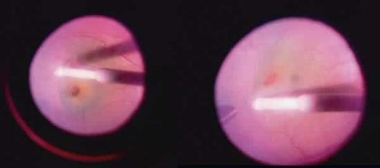 DME y Vitrectomía con pelado de membrana limitante interna (MLI)