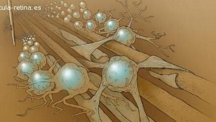 Stem Cells, Inc. amplía el ensayo clínico para la DMAE
