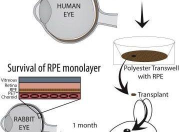 Células madre hRPESC derivadas de ERP para combatir la DMAE