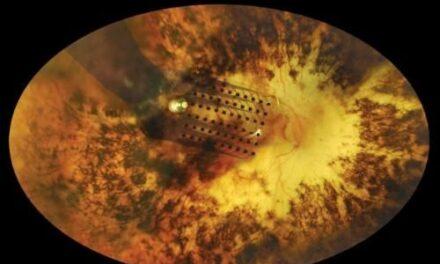 Prótesis de retina Argus® II