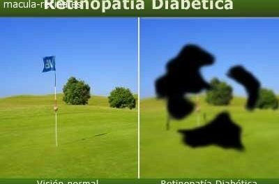La Retinopatía Diabética