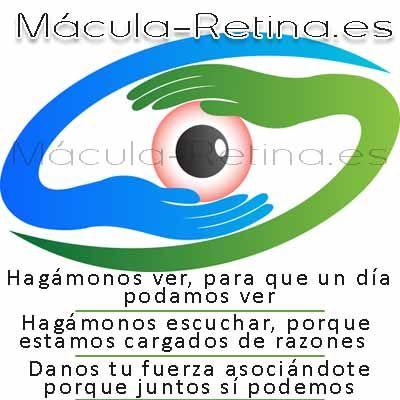 Maculopatías en Mácula-Retina