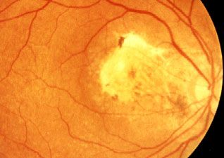 Hallan una proteína que evita la luz que induce la degeneración de la retina