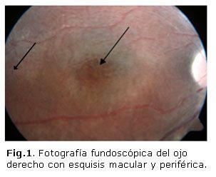Tratamiento del edema macular cistoideo asociado con Retinosis Pigmentaria