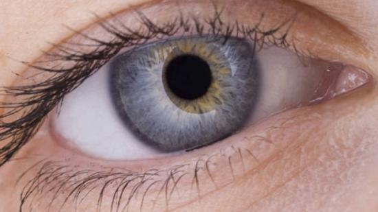 Dos mutaciones genéticas causan el melanoma ocular