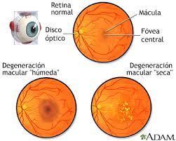 Degeneración macular y baja visión