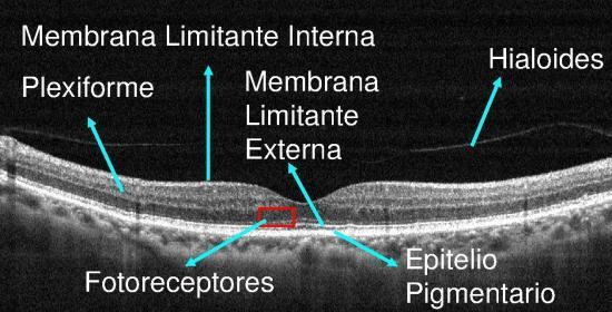 La principal causa de pérdida de visión en mayores de 65 años: la DMAE