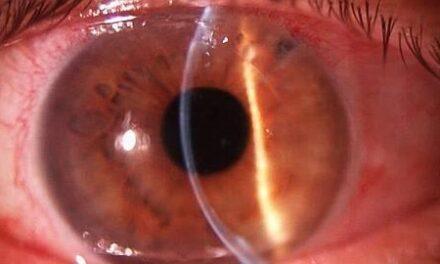 Fumar se relaciona con la pérdida de visión que causa la degeneración macular