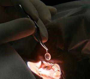 Primer tratamiento ocular con células madre de la UE