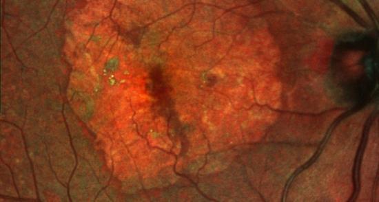 El Institut de la Màcula i de la Retina, primer centro acreditado en Europa para el ensayo médico Chroma