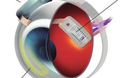 Sistema de prótesis de retina Argus II
