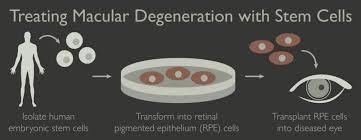 Positivos resultados tratamiento con células epiteliales del pigmento retiniano