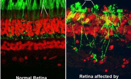 La terapia génica da protección a largo plazo a las células fotorreceptoras en un modelo de ratón con retinosis pigmentaria
