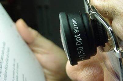 Consejos prácticos sobre DMAE (por Centro Óptico Alomar)
