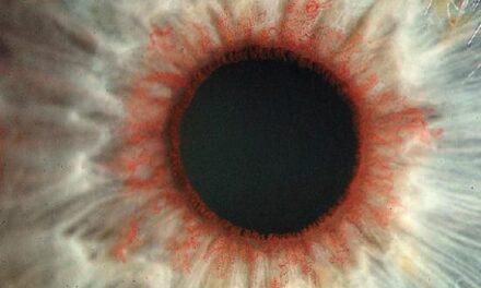 Terapia celular del epitelio pigmentario de la retina en distrofias retinianas hereditarias