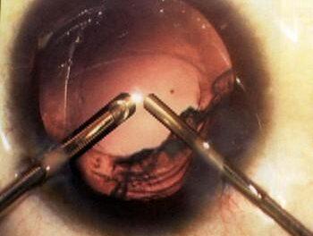 La cirugía vitreorretiniana ya es presente
