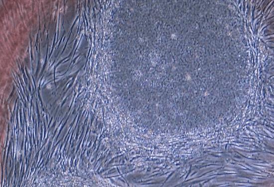 Trasplante de retina con células madre iPS detiene la progresión de la DMAE