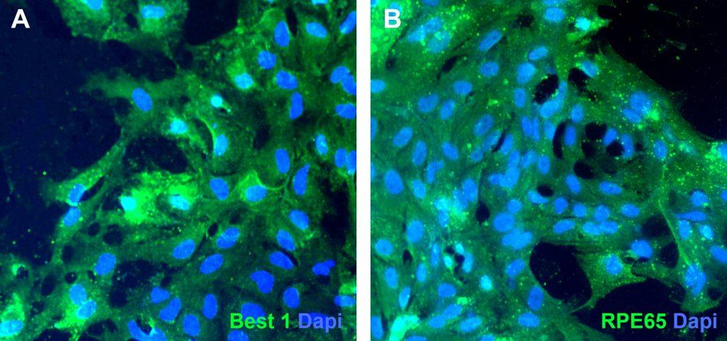 Revertir enfermedades degenerativas de la retina