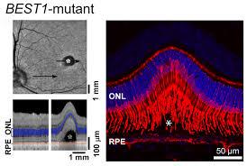 enfermedades degenerativas de la retina gen best 1