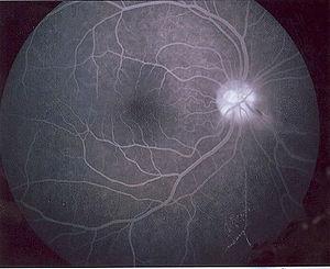 Angiografía con fluoresceína