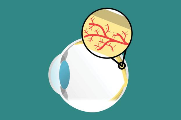Envejecimiento de las células inmunes asociado con la DMAE