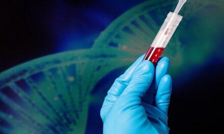 Zimura combinado con terapia anti-VEGF para DMAE