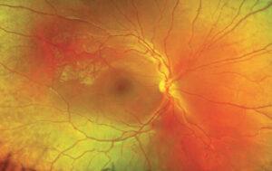 retinosquisis juvenil