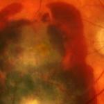 La importancia de las células madre para la cura de la DMAE