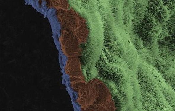 Parche de epitelio pigmentario de la retina en ratones y cerdos