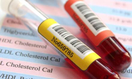 Estudio muestra correlación entre HDL, triglicéridos y DMAE