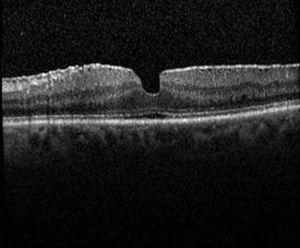 Membrana Epiretinal (OCT)